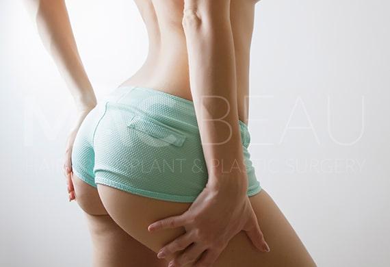 Brazilian Butt (BBL)
